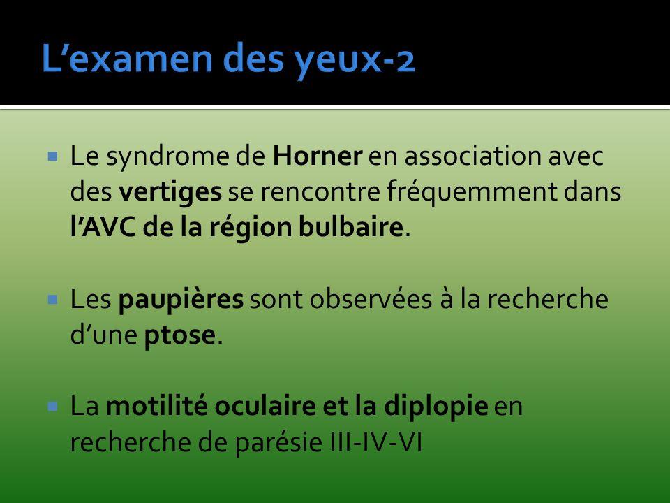 Le syndrome de Horner en association avec des vertiges se rencontre fréquemment dans lAVC de la région bulbaire. Les paupières sont observées à la rec