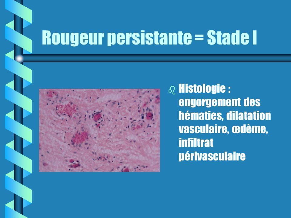 Rougeur persistante = Stade I b Histologie : engorgement des hématies, dilatation vasculaire, œdème, infiltrat périvasculaire