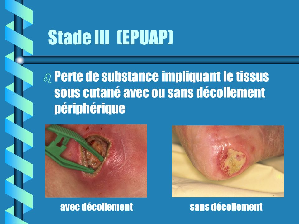 Stade III (EPUAP) b b Perte de substance impliquant le tissus sous cutané avec ou sans décollement périphérique avec décollementsans décollement