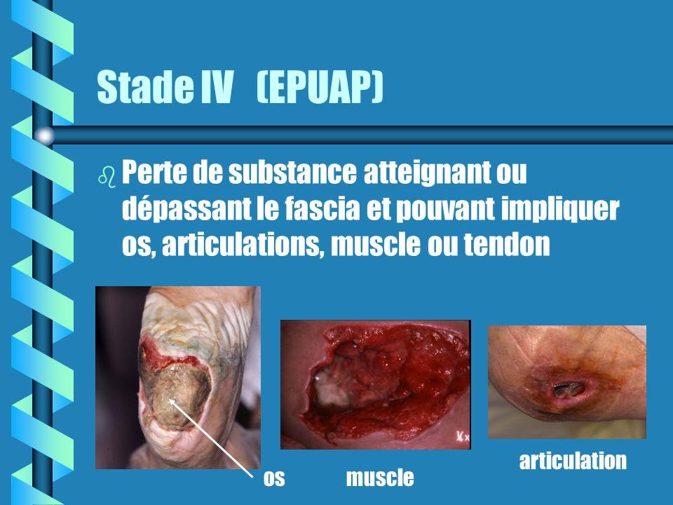 Stade IV (EPUAP) b b Perte de substance atteignant ou dépassant le fascia et pouvant impliquer os, articulations, muscle ou tendon osmuscle articulation