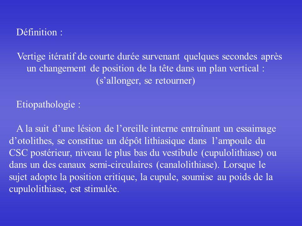 Définition : Vertige itératif de courte durée survenant quelques secondes après un changement de position de la tête dans un plan vertical : (sallonger, se retourner) Etiopathologie : A la suit dune lésion de loreille interne entraînant un essaimage dotolithes, se constitue un dépôt lithiasique dans lampoule du CSC postérieur, niveau le plus bas du vestibule (cupulolithiase) ou dans un des canaux semi-circulaires (canalolithiase).