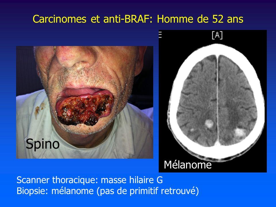 Carcinomes et anti-BRAF: Homme de 52 ans Scanner thoracique: masse hilaire G Biopsie: mélanome (pas de primitif retrouvé) Spino Mélanome