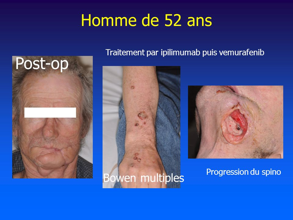 Homme de 52 ans Post-op Bowen multiples Progression du spino Traitement par ipilimumab puis vemurafenib