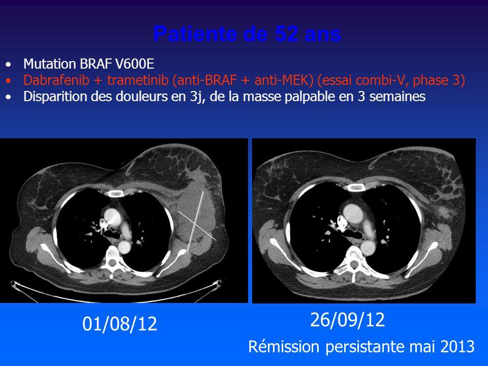 Mutation BRAF V600E Dabrafenib + trametinib (anti-BRAF + anti-MEK) (essai combi-V, phase 3) Disparition des douleurs en 3j, de la masse palpable en 3 semaines 01/08/12 26/09/12 Patiente de 52 ans Rémission persistante mai 2013