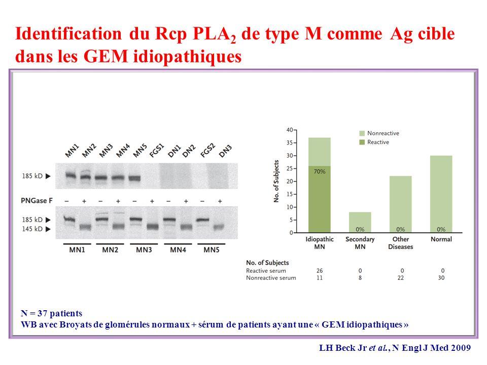Identification du Rcp PLA 2 de type M comme Ag cible dans les GEM idiopathiques N = 37 patients WB avec Broyats de glomérules normaux + sérum de patients ayant une « GEM idiopathiques » LH Beck Jr et al., N Engl J Med 2009