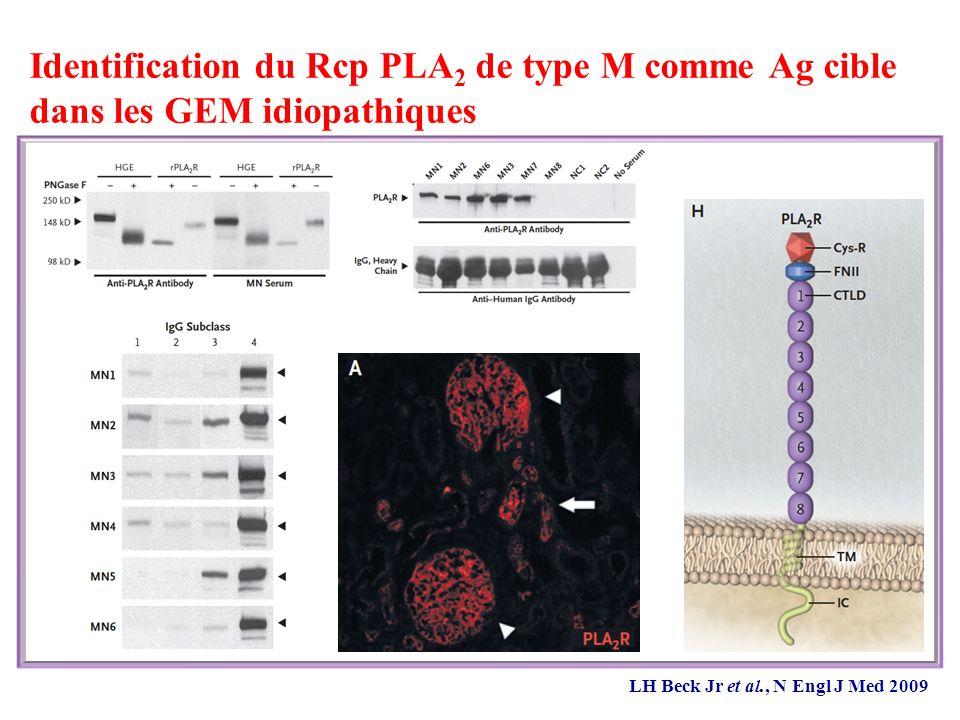 Identification du Rcp PLA 2 de type M comme Ag cible dans les GEM idiopathiques LH Beck Jr et al., N Engl J Med 2009