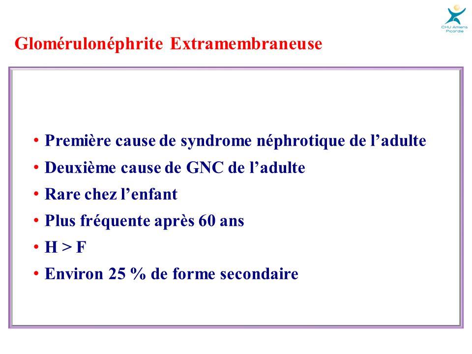 Glomérulonéphrite Extramembraneuse Présentation clinique Syndrome néphrotique impur (80 %) Hématurie microscopique (70 %) HTA et IRC Protéinurie modérée ± hématurie (20 %) Thrombose des veines rénales (< 1 %) Douleur lombaire Hématurie macroscopique Elévation des LDH IRA
