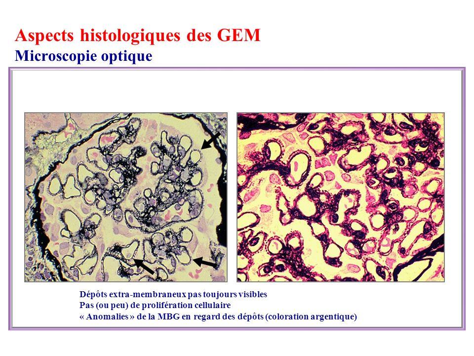 Aspects histologiques des GEM Microscopie optique Dépôts extra-membraneux pas toujours visibles Pas (ou peu) de prolifération cellulaire « Anomalies » de la MBG en regard des dépôts (coloration argentique)