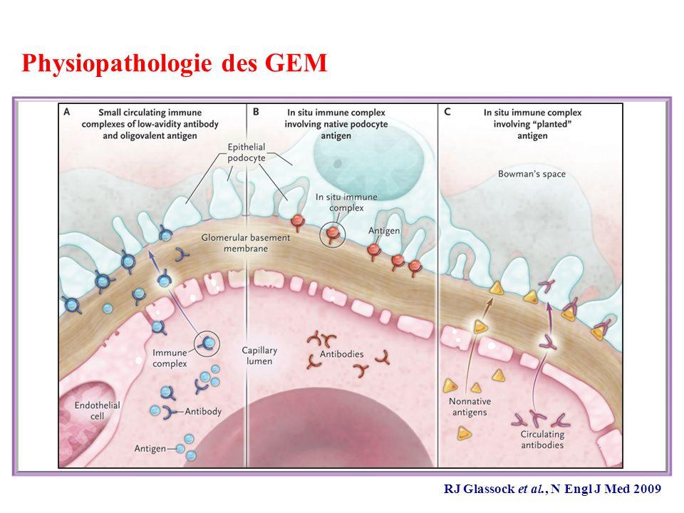 Traitement des GEM primitives Place de lacide mycophénolique Etude sur 16 patients avec SN résistant aux CS, aux IS ou à la CYC : -Traitement par MMF 0,5 à 2 g/j -Réduction de la protéinurie chez 6 patients (37%) après 6 mois de TTT Comparaison MMF + corticoïdes vs « Ponticelli modifié » : - Étude prospective randomisée sur 20 patients, traitement 6 mois - Effet similaire des 2 traitements sur la protéinurie (suivi 20 mois) Comparaison MMF vs CYC (+ corticoïdes) : - Groupe MMF (n = 32) vs groupe « historique» traité par CYC (n=32) - Durée de suivi courte : 23 (11 - 46) mois - Réduction de la protéinurie chez la majorité des patients - Mais meilleure réponse et moins de rechute dans le groupe CYC Miller et al., Am J Kidney Dis 2000; Chan et al., Nephrology 2007; Branten et al., Am J Kidney 2007