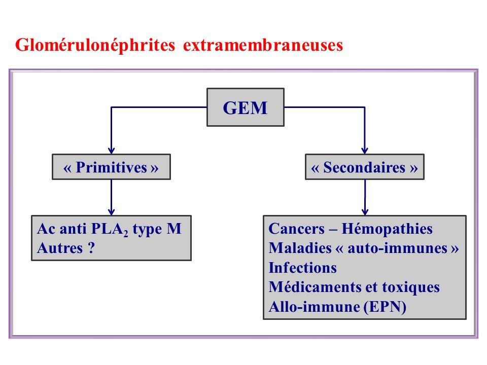 Glomérulonéphrites extramembraneuses « Primitives »« Secondaires » GEM Cancers – Hémopathies Maladies « auto-immunes » Infections Médicaments et toxiques Allo-immune (EPN) Ac anti PLA 2 type M Autres ?