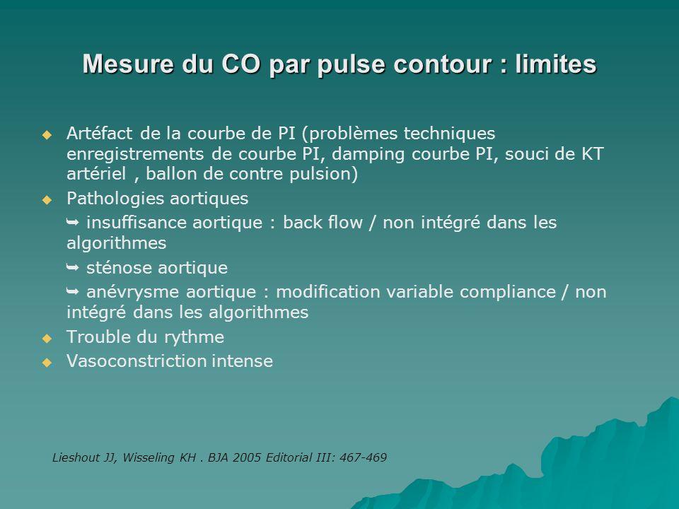Mesure du CO par pulse contour : limites Artéfact de la courbe de PI (problèmes techniques enregistrements de courbe PI, damping courbe PI, souci de K