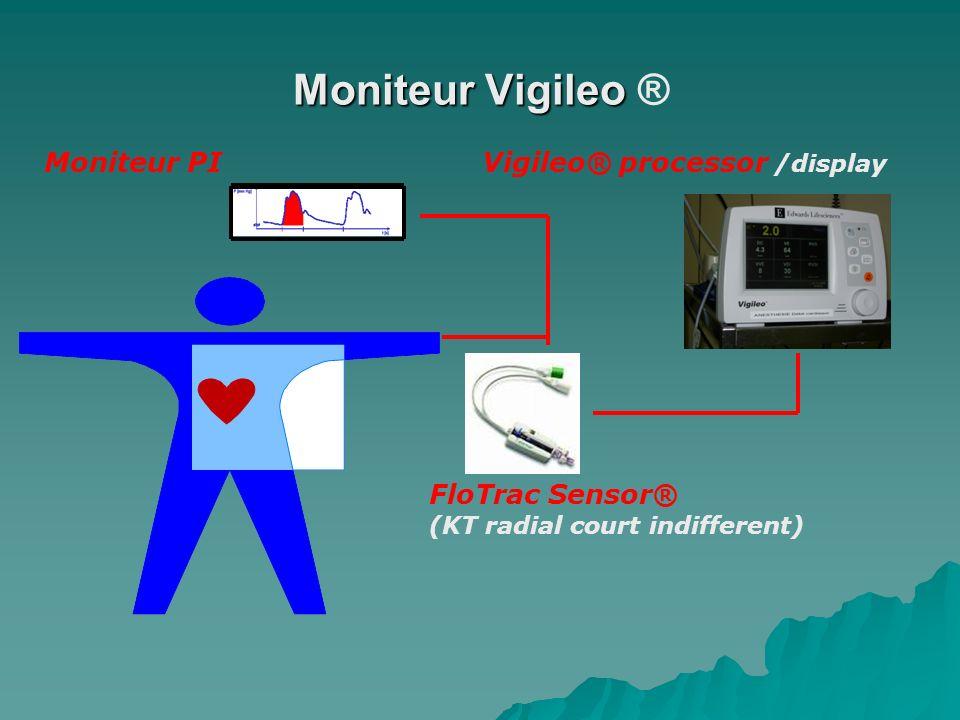 Moniteur Vigileo Moniteur Vigileo ® FloTrac Sensor® (KT radial court indifferent) Vigileo® processor /display Moniteur PI