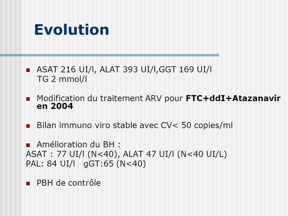 Evolution ASAT 216 UI/l, ALAT 393 UI/l,GGT 169 UI/l TG 2 mmol/l Modification du traitement ARV pour FTC+ddI+Atazanavir en 2004 Bilan immuno viro stabl