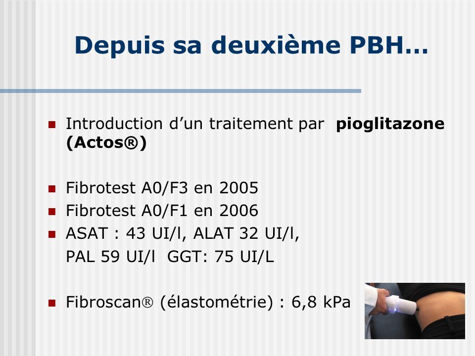 Depuis sa deuxième PBH… Introduction dun traitement par pioglitazone (Actos®) Fibrotest A0/F3 en 2005 Fibrotest A0/F1 en 2006 ASAT : 43 UI/l, ALAT 32