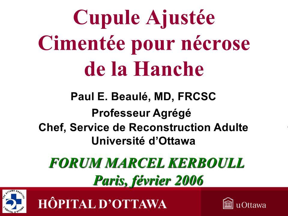 HÔPITAL DOTTAWA Cupule Ajustée Cimentée pour nécrose de la Hanche FORUM MARCEL KERBOULL Paris, février 2006 Paris, février 2006 Paul E. Beaulé, MD, FR
