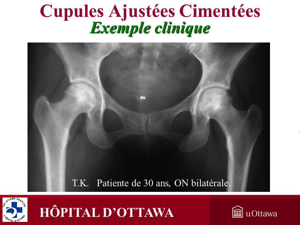 HÔPITAL DOTTAWA Cupules Ajustées Cimentées Exemple clinique T.K. Patiente de 30 ans, ON bilatérale.