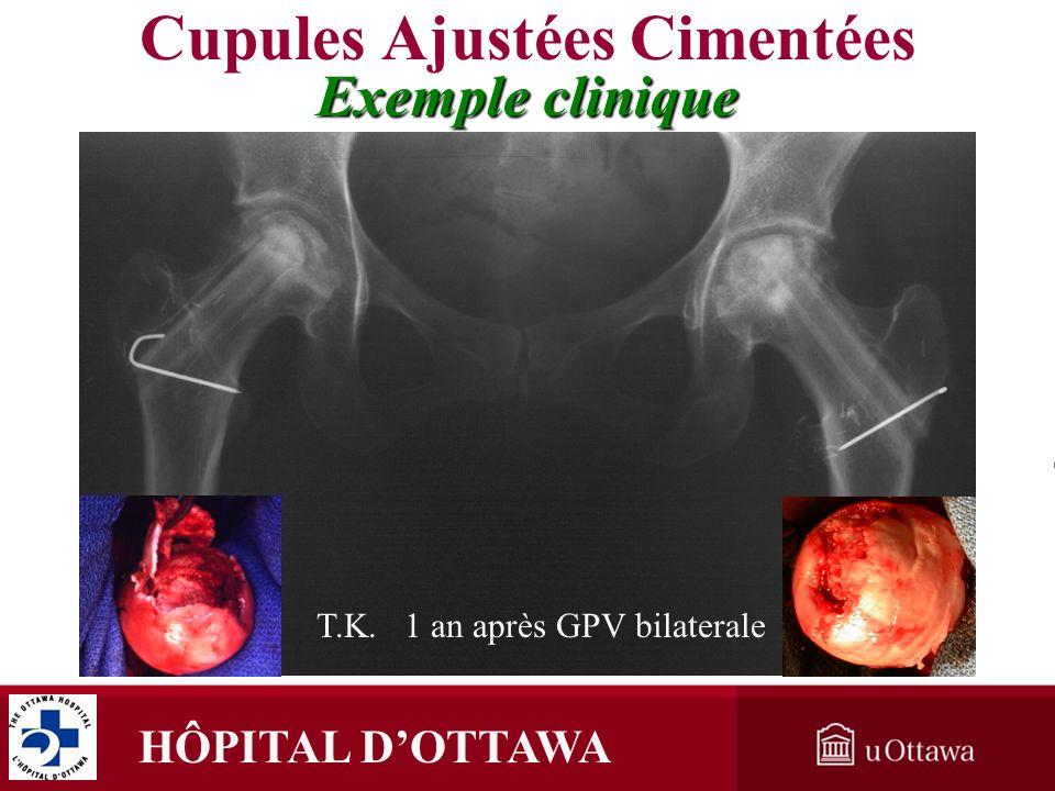 HÔPITAL DOTTAWA T.K. 1 an après GPV bilaterale Cupules Ajustées Cimentées Exemple clinique
