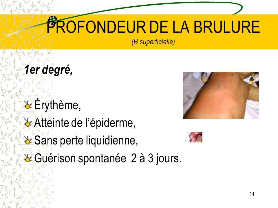 14 PROFONDEUR DE LA BRULURE (B superficielle) 1er degré, Érythème, Atteinte de lépiderme, Sans perte liquidienne, Guérison spontanée 2 à 3 jours.