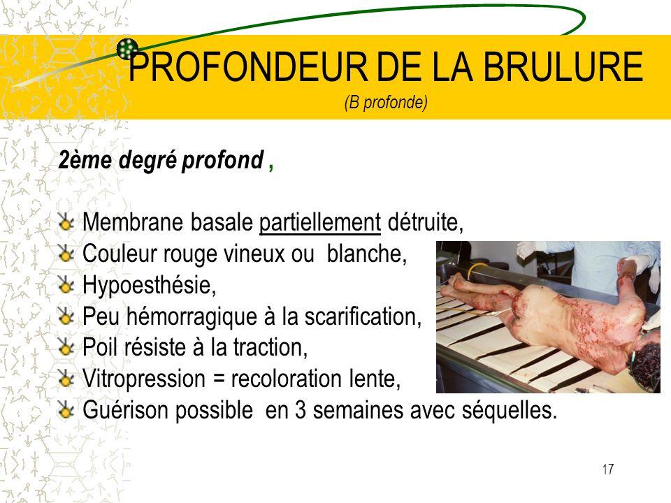 17 PROFONDEUR DE LA BRULURE (B profonde) 2ème degré profond, Membrane basale partiellement détruite, Couleur rouge vineux ou blanche, Hypoesthésie, Pe