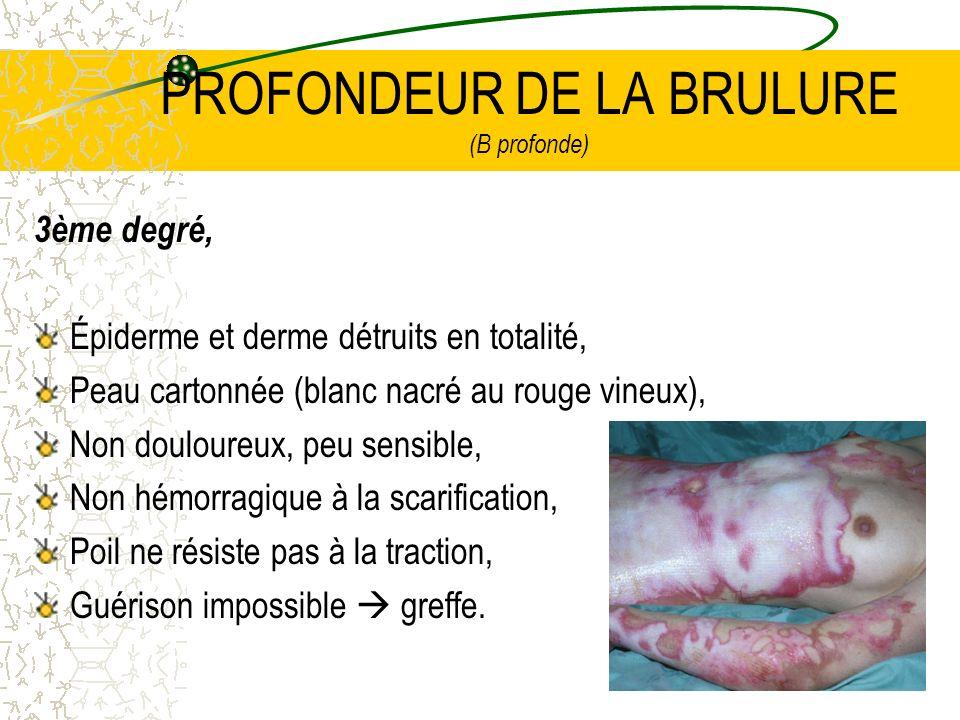 19 PROFONDEUR DE LA BRULURE (B profonde) 3ème degré, Épiderme et derme détruits en totalité, Peau cartonnée (blanc nacré au rouge vineux), Non doulour