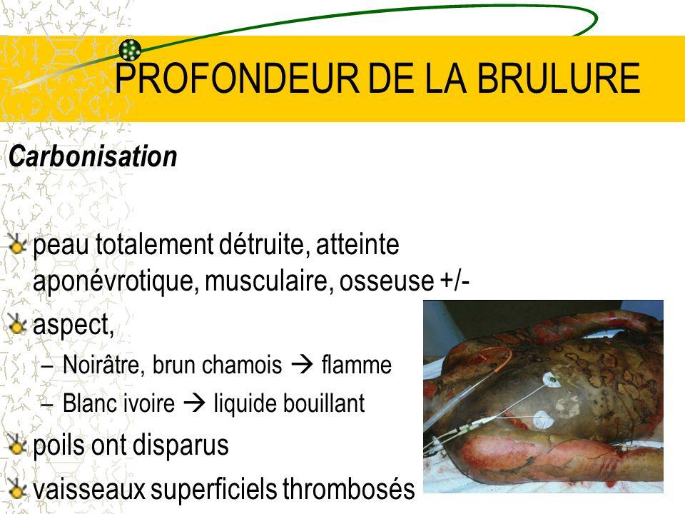 21 PROFONDEUR DE LA BRULURE Carbonisation peau totalement détruite, atteinte aponévrotique, musculaire, osseuse +/- aspect, –Noirâtre, brun chamois fl