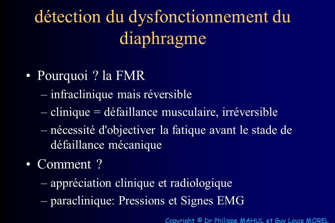 détection du dysfonctionnement du diaphragme Pourquoi .
