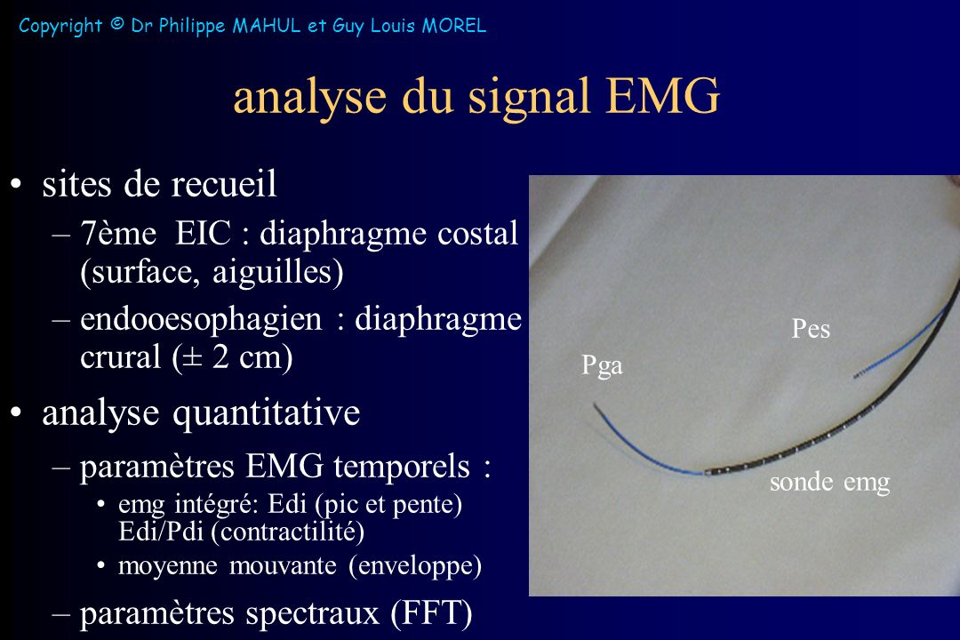 analyse du signal EMG sites de recueil –7ème EIC : diaphragme costal (surface, aiguilles) –endooesophagien : diaphragme crural (± 2 cm) analyse quantitative –paramètres EMG temporels : emg intégré: Edi (pic et pente) Edi/Pdi (contractilité) moyenne mouvante (enveloppe) –paramètres spectraux (FFT) Pga Pes sonde emg Copyright © Dr Philippe MAHUL et Guy Louis MOREL