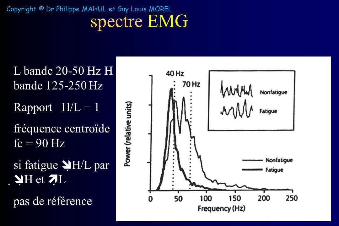 spectre EMG L bande 20-50 Hz H bande 125-250 Hz Rapport H/L = 1 fréquence centroïde fc = 90 Hz si fatigue H/L par H et L pas de référence Copyright © Dr Philippe MAHUL et Guy Louis MOREL