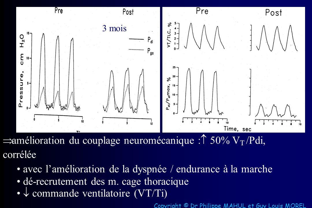 3 mois amélioration du couplage neuromécanique : 50% V T /Pdi, corrélée avec lamélioration de la dyspnée / endurance à la marche dé-recrutement des m.