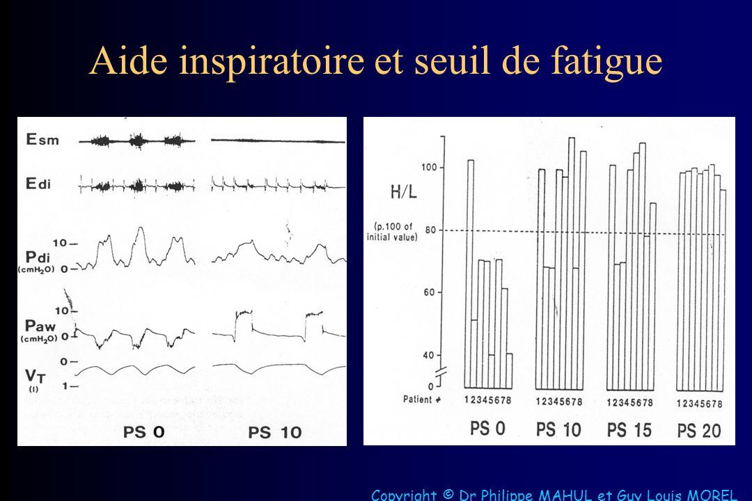 Aide inspiratoire et seuil de fatigue Copyright © Dr Philippe MAHUL et Guy Louis MOREL