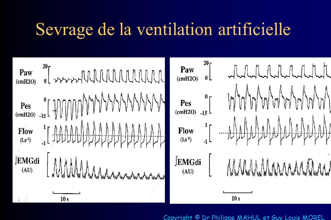 Sevrage de la ventilation artificielle Copyright © Dr Philippe MAHUL et Guy Louis MOREL