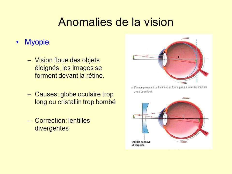Anomalies de la vision Myopie : –Vision floue des objets éloignés, les images se forment devant la rétine. –Causes: globe oculaire trop long ou crista