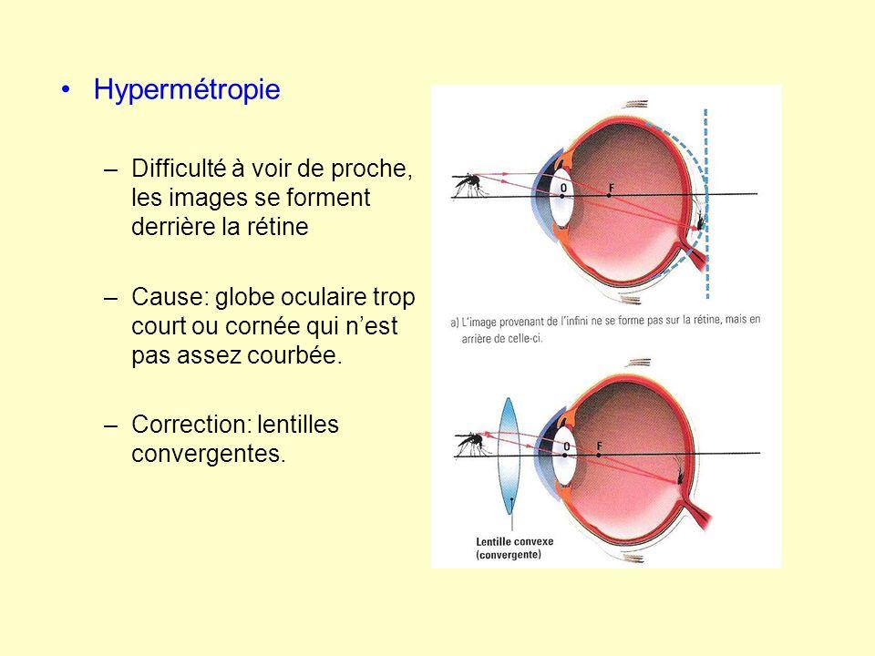 presbytie: –Difficulté à voir de proche, les images se forment derrière la rétine –Cause: perte de souplesse du cristallin qui ne peut plus se bomber suffisamment –Correction: lentilles convergentes.