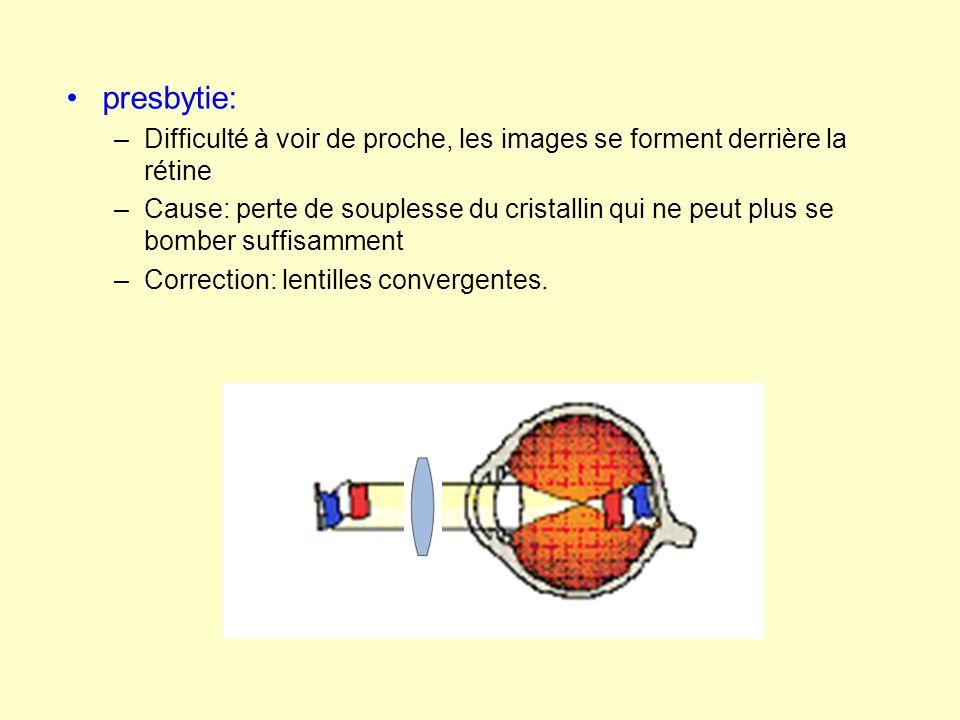 presbytie: –Difficulté à voir de proche, les images se forment derrière la rétine –Cause: perte de souplesse du cristallin qui ne peut plus se bomber