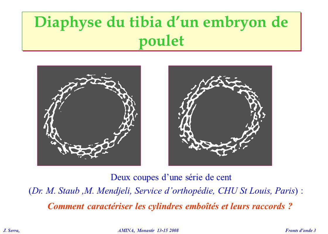 J. Serra, AMINA, Monastir 13-15 2008 Fronts donde 3 Diaphyse du tibia dun embryon de poulet Deux coupes dune série de cent (Dr. M. Staub,M. Mendjeli,