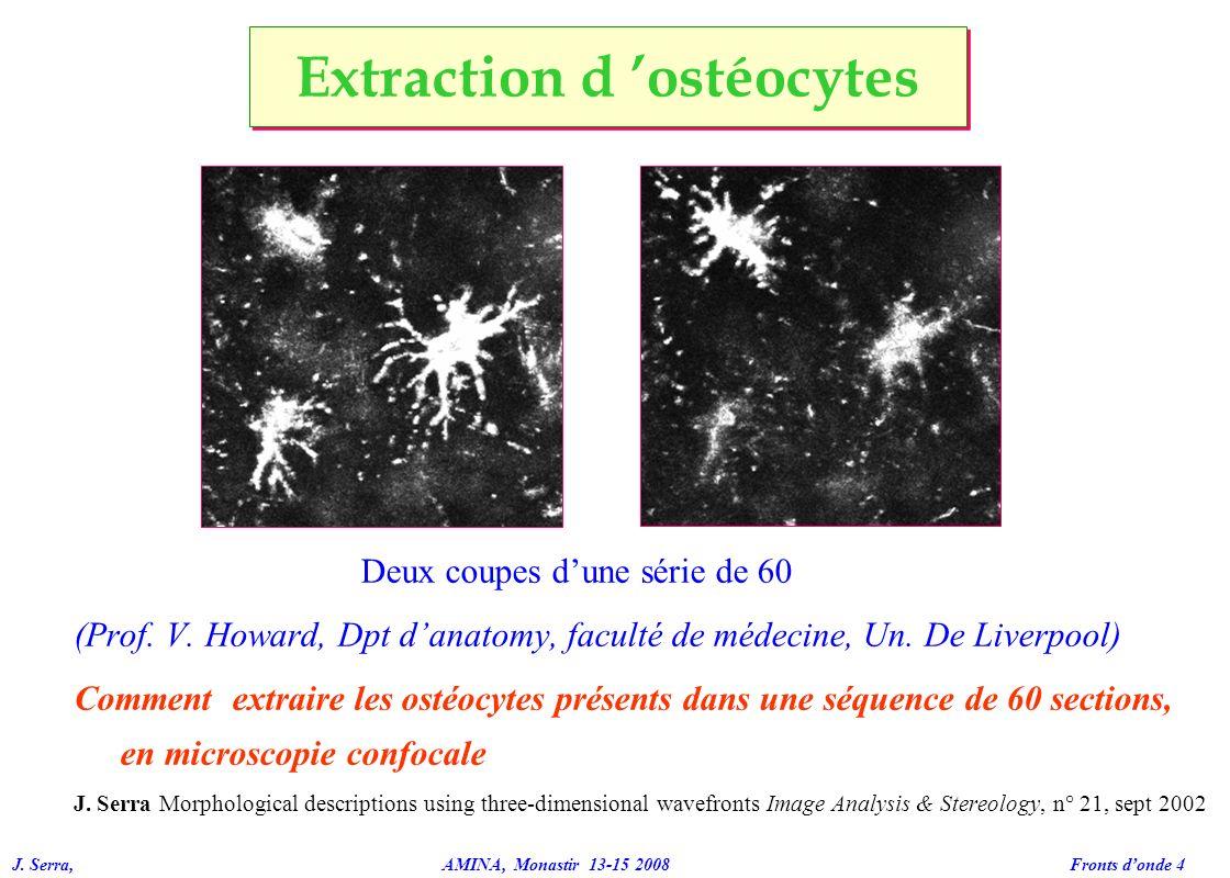 J. Serra, AMINA, Monastir 13-15 2008 Fronts donde 4 Deux coupes dune série de 60 (Prof. V. Howard, Dpt danatomy, faculté de médecine, Un. De Liverpool