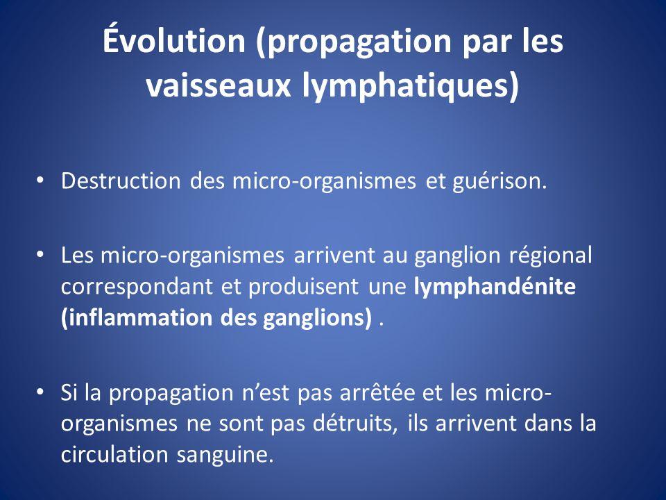 Évolution (propagation par les vaisseaux lymphatiques) Destruction des micro-organismes et guérison. Les micro-organismes arrivent au ganglion régiona