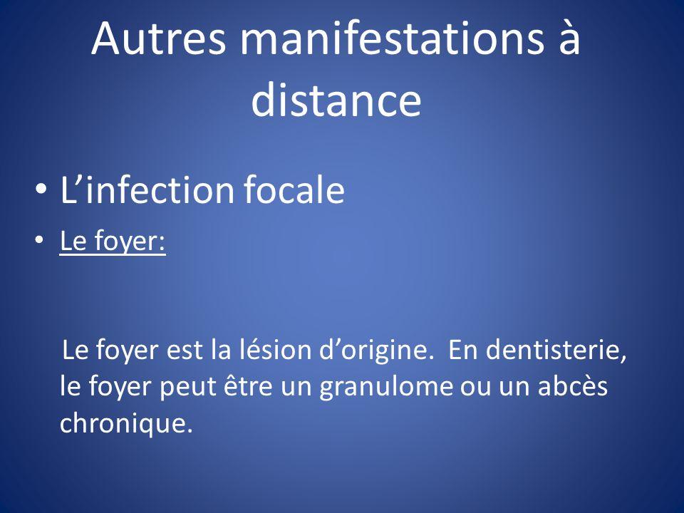 Autres manifestations à distance Linfection focale Le foyer: Le foyer est la lésion dorigine. En dentisterie, le foyer peut être un granulome ou un ab