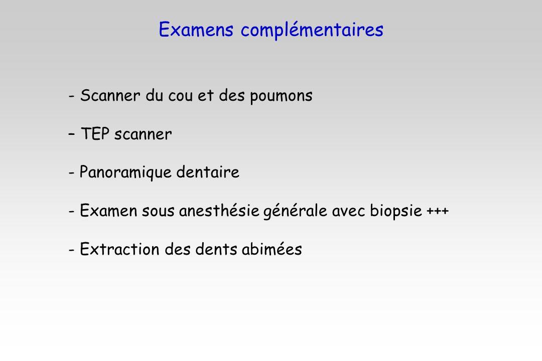 Examens complémentaires - Scanner du cou et des poumons – TEP scanner - Panoramique dentaire - Examen sous anesthésie générale avec biopsie +++ - Extr
