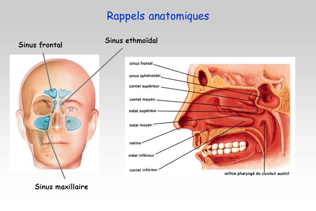 Sinus maxillaire Sinus ethmoïdal Sinus frontal