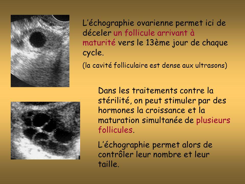 La croissance folliculaire prépare lovulation : cest l «expulsion» de lovule par le follicule mûr, stimulé par le pic hormonal de LH.