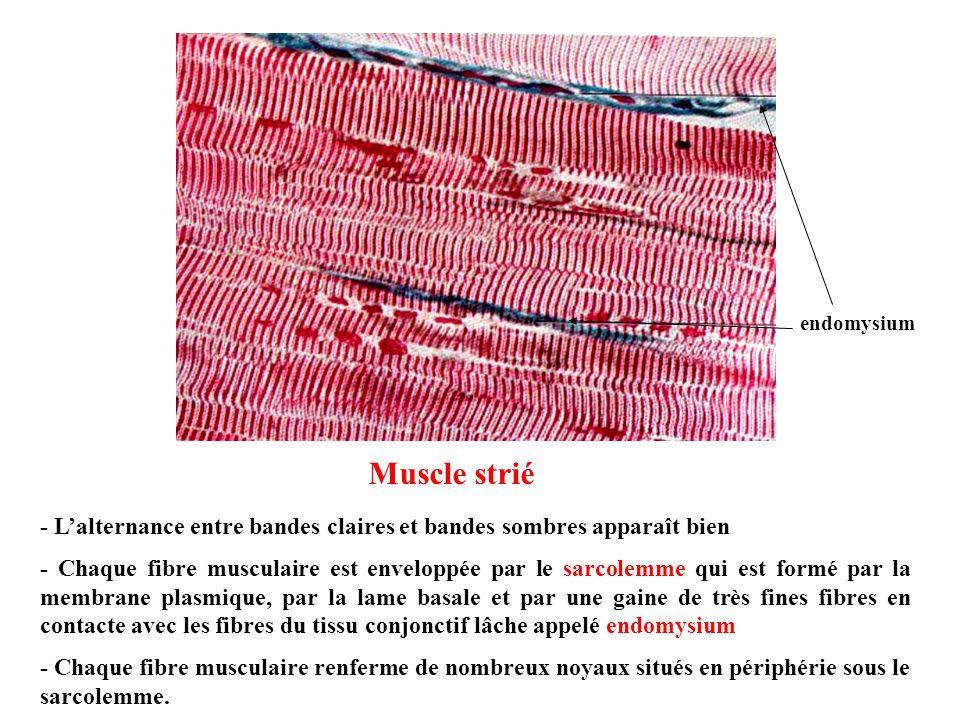 Muscle strié - Lalternance entre bandes claires et bandes sombres apparaît bien - Chaque fibre musculaire est enveloppée par le sarcolemme qui est for