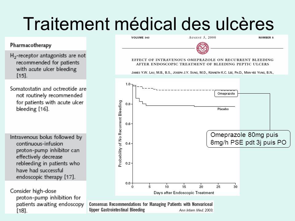 Traitement médical des ulcères Omeprazole 80mg puis 8mg/h PSE pdt 3j puis PO