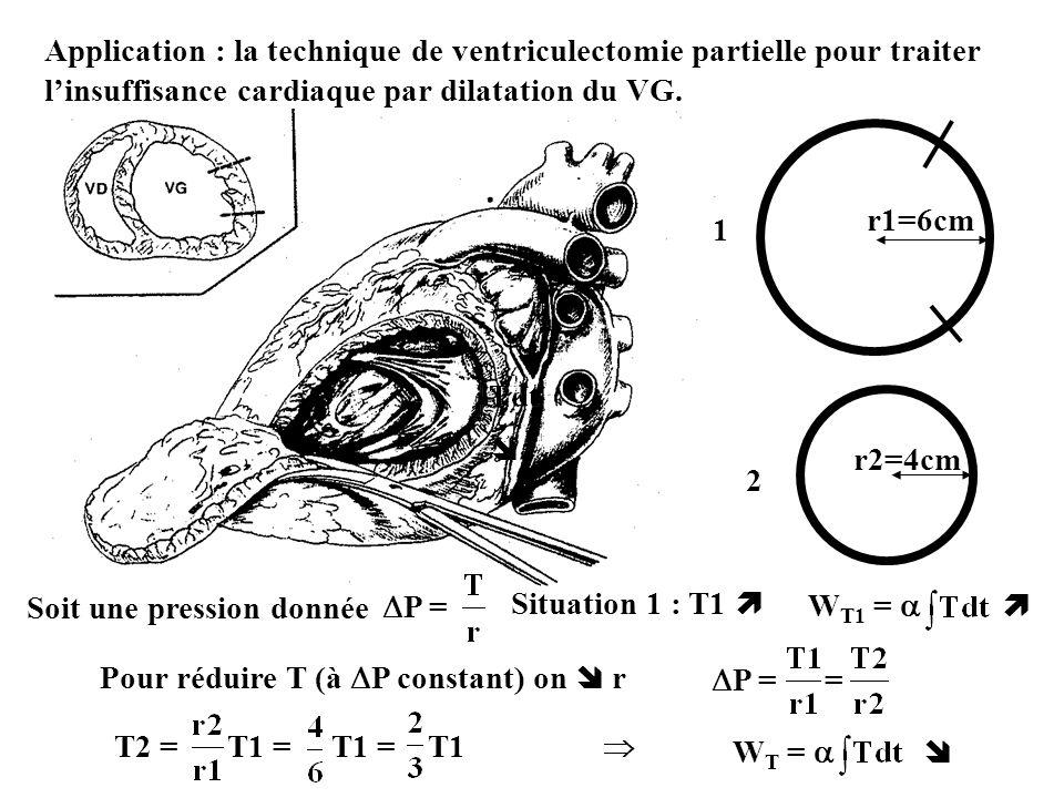Application : la technique de ventriculectomie partielle pour traiter linsuffisance cardiaque par dilatation du VG. r1=6cm 1 r2=4cm 2 Situation 1 : T1
