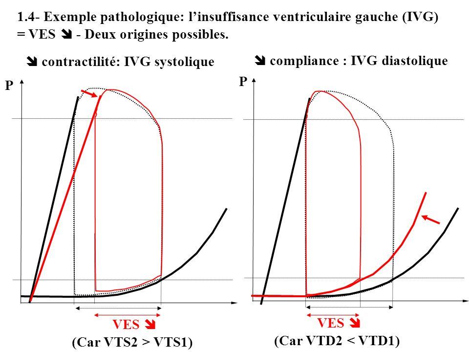 1.4- Exemple pathologique: linsuffisance ventriculaire gauche (IVG) = VES - Deux origines possibles. contractilité: IVG systolique compliance : IVG di