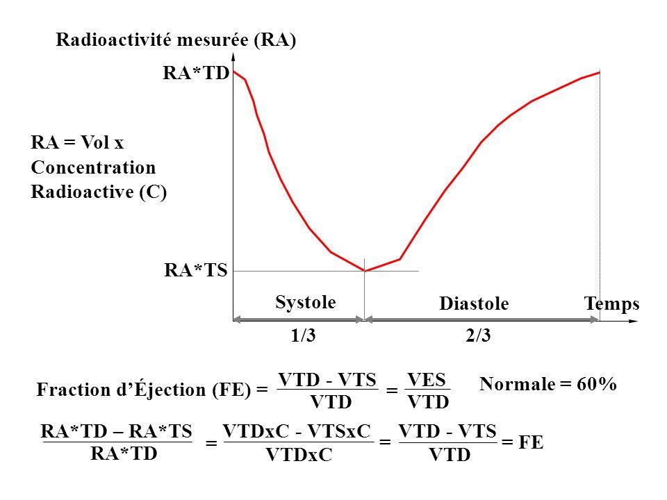 Loi de Starling : rappel VES = VTD - VTS VES VTD Le volume d éjection en systole (VES) est une fonction directe de l étirement des fibres myocardiques en diastole jusqu à une distension maximale.