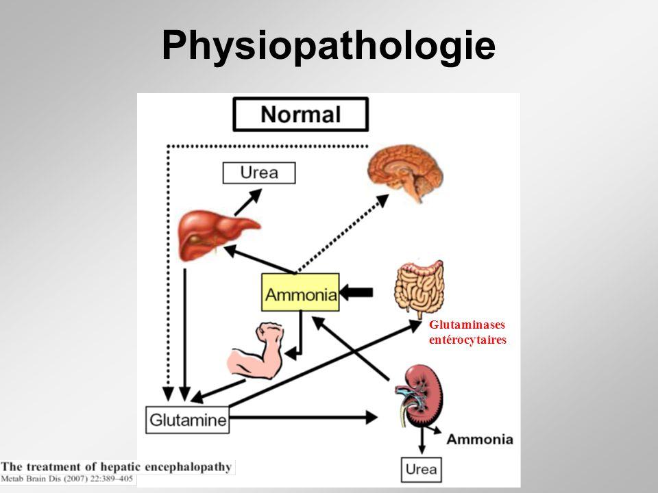 Physiopathologie Glutaminases entérocytaires