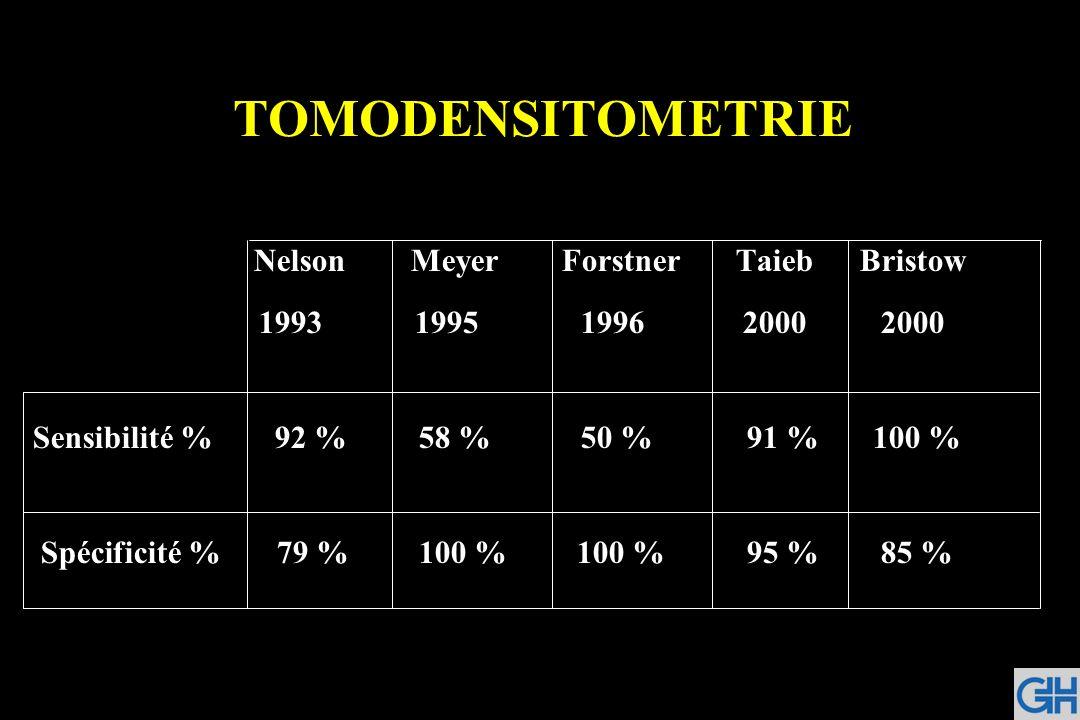 TOMODENSITOMETRIE Nelson Meyer Forstner TaiebBristow 1993 19951996 20002000 Sensibilité % 92 % 58 % 50 % 91 % 100 % Spécificité % 79 % 100 % 100 % 95