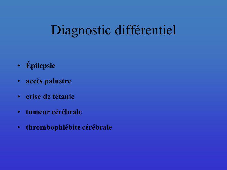 Diagnostic différentiel Épilepsie accès palustre crise de tétanie tumeur cérébrale thrombophlébite cérébrale