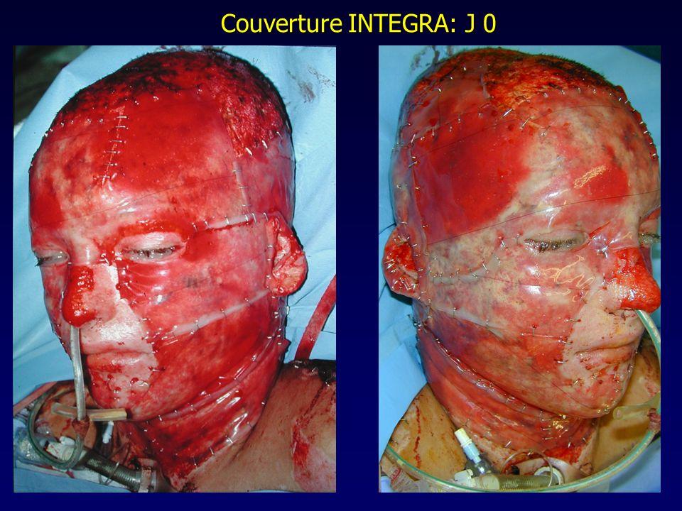 Couverture INTEGRA: J 0